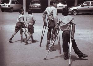 Polio_Paralysis-300x212